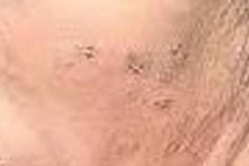 Möglicher Morgellons-Befall an der Wange